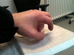 """""""Sie baden gerade Ihre Hände drin"""" – Der Finger wurde in einer Desinfektionslösung eingeweicht."""